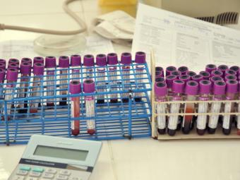 Blood samples in lab